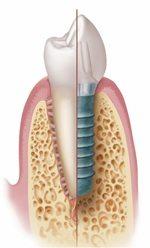 Implant_Ilustration 1